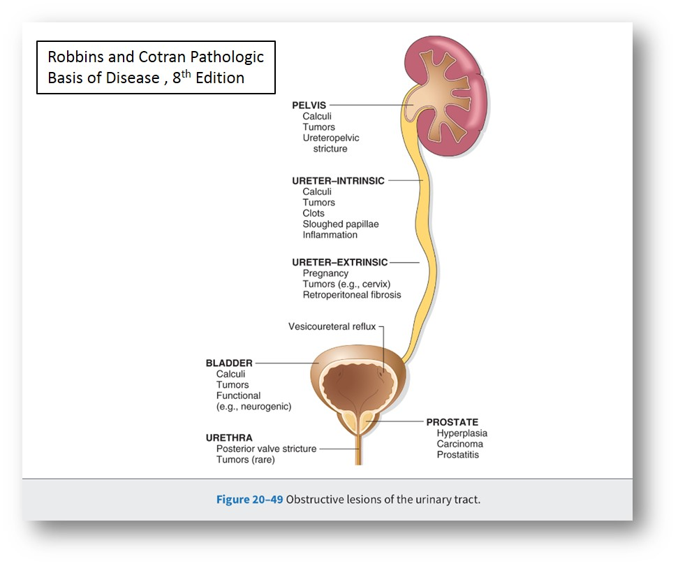 Iii Lower Urinary Tract And Male Genital System Pathology Demystified