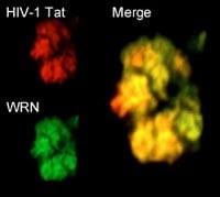 HIV-1 virus