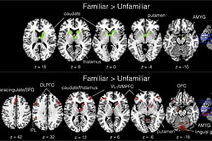 Psychology Today: Empathic People Use Social Brain Circuitry