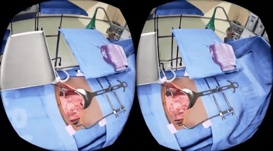 Virtual Reality Brings Cervical Cancer Surgery Training to Physicians