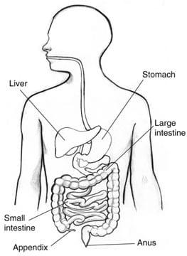 Appendicitis.jpg