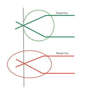 myopia line diagram