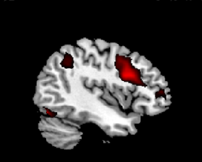 A black and white image of a brain with several red blobs indicating activation.