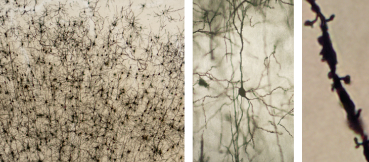 Three photographs of neurons, each image at a higher magnification than the previous. The image background is brown. Cell bodies are black and ovular. Dendritic branches look like sinuous lines extending from each cell body. Left panel: Lowest magnification. Approximately 200 neurons are shown. Neurons in the lower portion of the image are densely packed. A long dendrite extends from the top of each neuron, in parallel with those from neighboring neurons. Dendrites at the base of each neuron extend in all directions, overlapping with those from neighboring neurons. Neurons in the upper portion are less densely packed, and have fewer dendritic branches that extend from all sides of the cell body. Middle panel: Higher magnification. A single neuron is shown. The neuron looks similar to those in the lower portion of the left panel. Right panel: Highest magnification. A segment of a single dendrite is shown. Small bumps and short mushroom-shaped projections (dendritic spines) cover the surface of the dendrite.