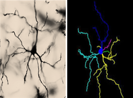 A photograph of a neuron (left panel) is shown next to an illustration of the same neuron (right panel). Left panel: The image background is brown. A single neuron is shown. The cell body is black and ovular, and dendritic branches look like sinuous lines extending from the cell body. A single dendrite extends from the top of the cell body, and multiple dendrites extend from the base. Right panel: A multicolor illustration of the neuron pictured in the left panel. The image background is black. The cell body and each dendritic tree is shown in a different color (dark blue, light blue, pink, green, and yellow). Parts of the dendritic tree that were out of focus in the left panel are clearly reconstructed in the right panel; the size and shape of each dendrite is otherwise identical between the two panels.