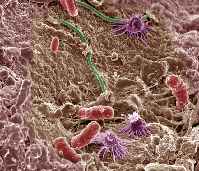 Alt Text: Colorized microscope image of multiple soil bacteria.