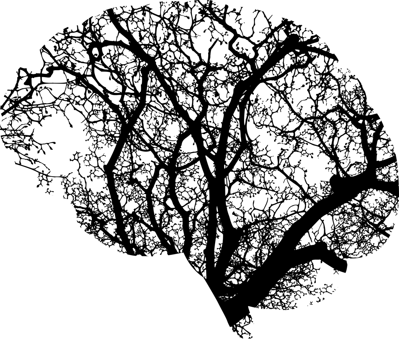 """[Black and white image of the brain. The black lines represent the many different """"connections"""" our brain uses in order to communicate and function.]"""