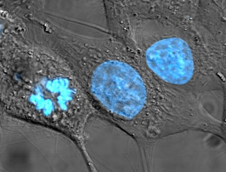 Close-up image of HeLa cells that have been stained with the dye Hoechst 33258 to make their nuclei fluorescent blue.