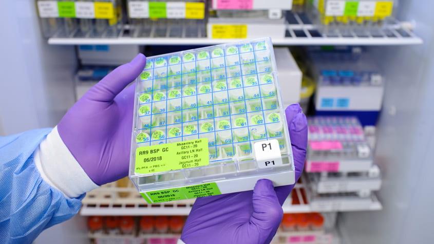 Preserved tissue samples