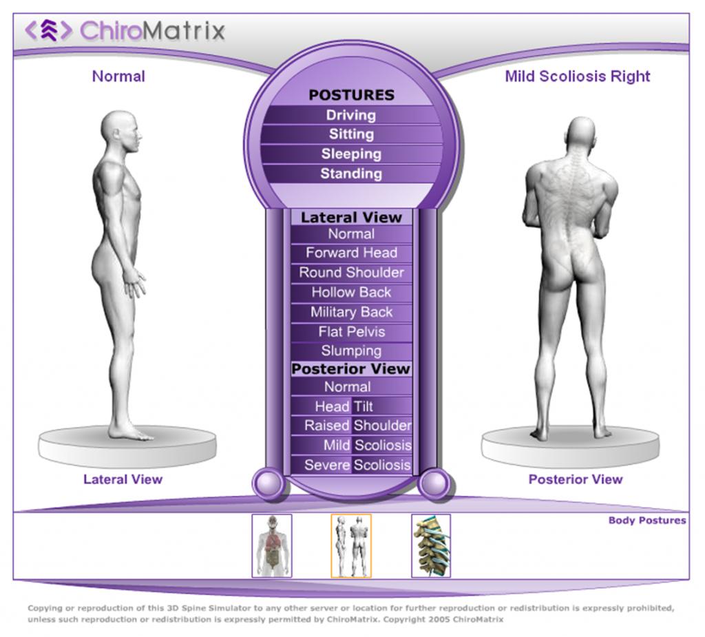 ChiroMatrix – Simulador 3D espinal   Ciencia Médica