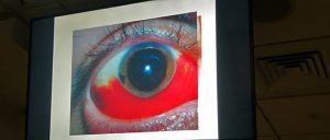 Screen hanging from wall shows half bloody eye from Iris and below.