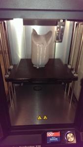 prosthetic surface model 3D