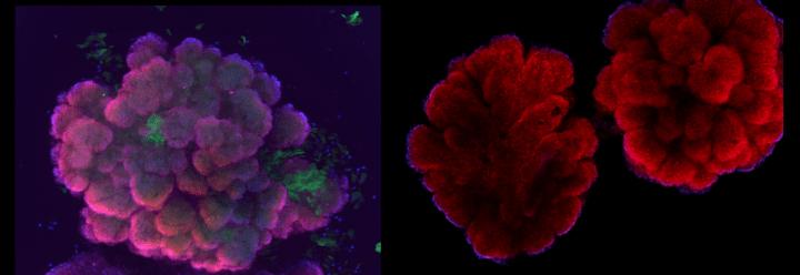 Photo of organoids. (Credit: IBSC)
