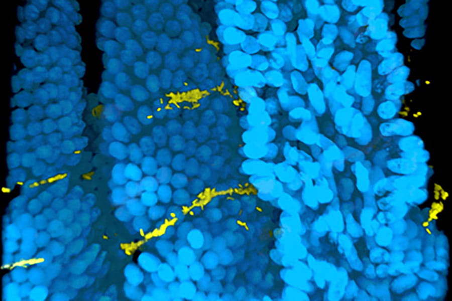 Cholera studies reveal mechanisms of biofilm formation & hyperinfectivity