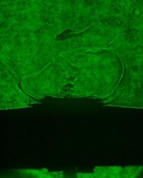 Laser Backlighter Image