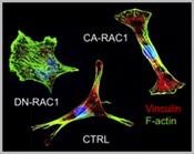 Thrust1-fetal_valve_remodeling