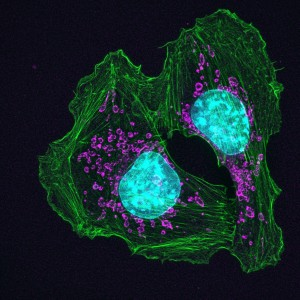 nih-cancer-cells-attachment