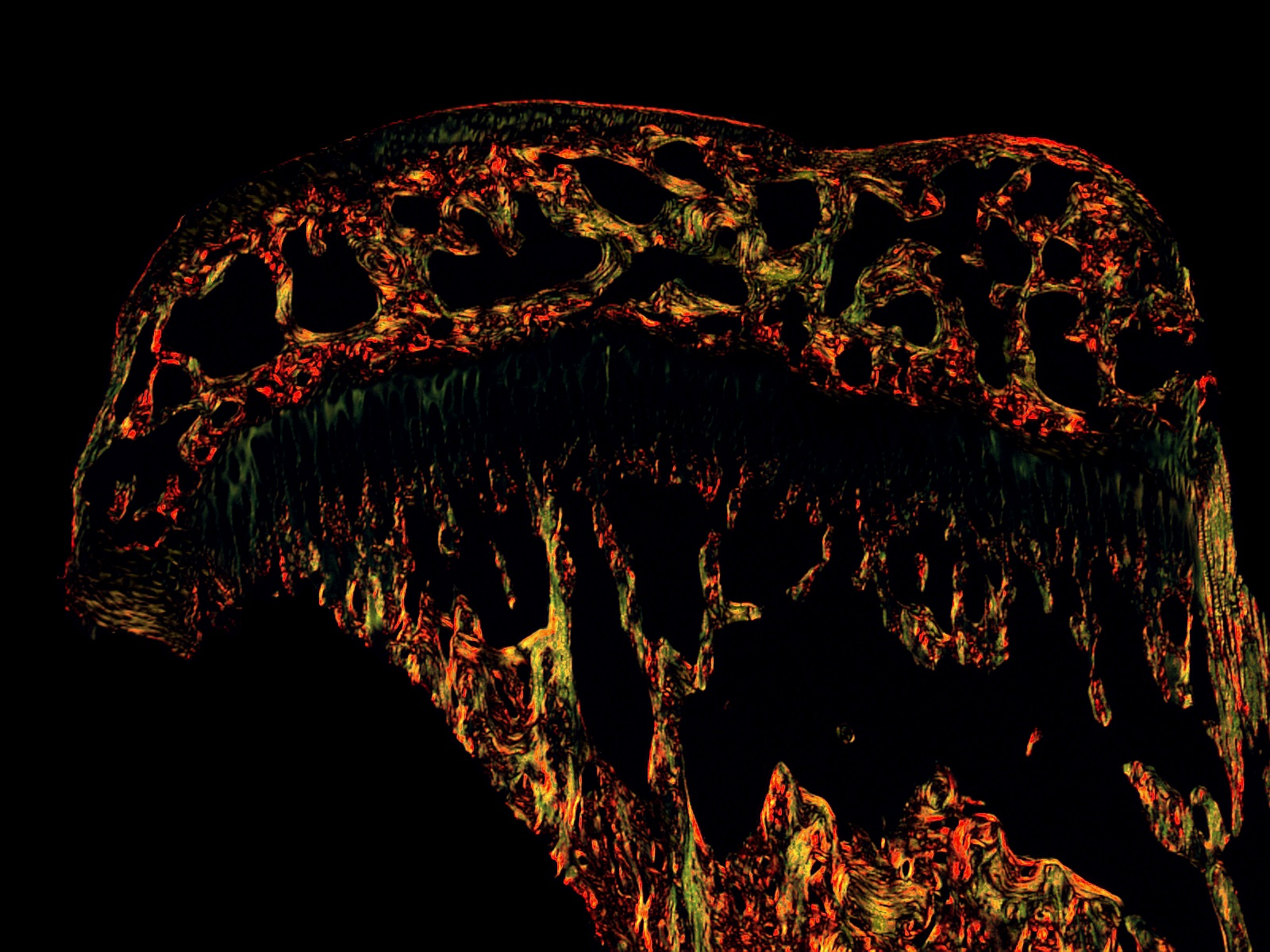 POLARIZED LIGHT IMAGE OF PICROSIRIUS RED-STAINED BONE