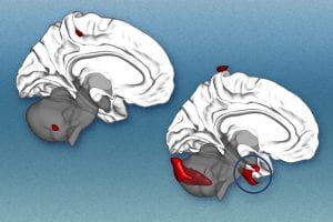 Toward smarter selection of therapy for psychiatric disorders