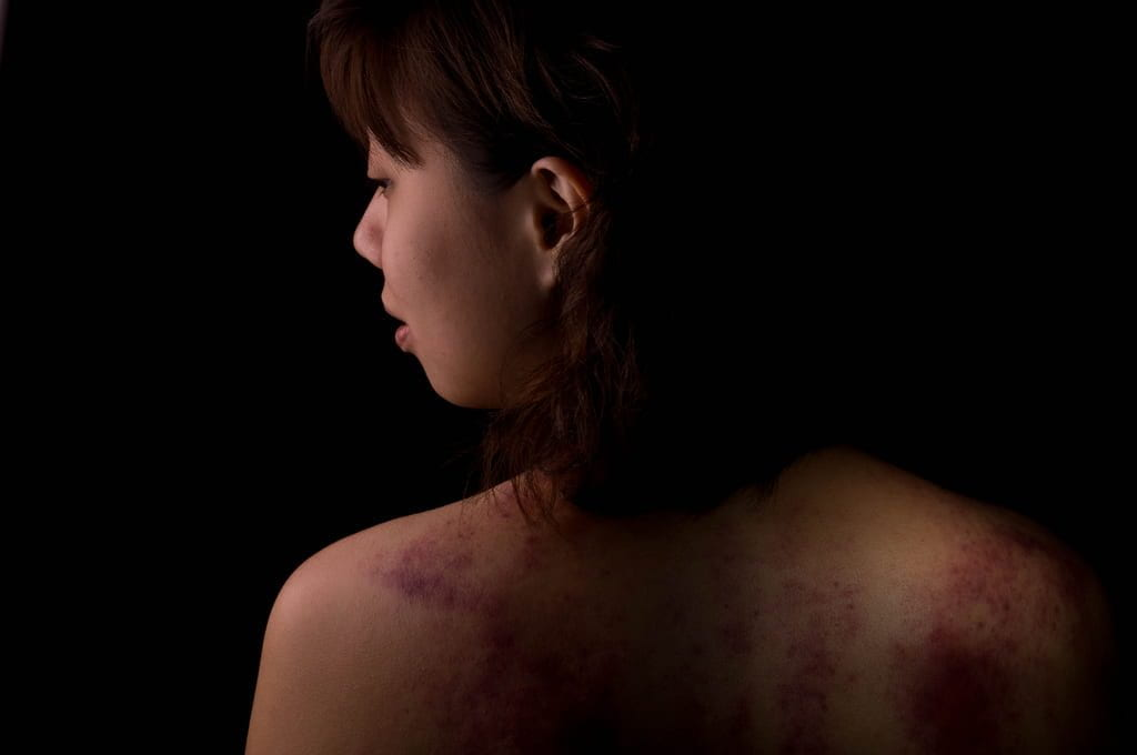 a picture of a girl with bruises on her back