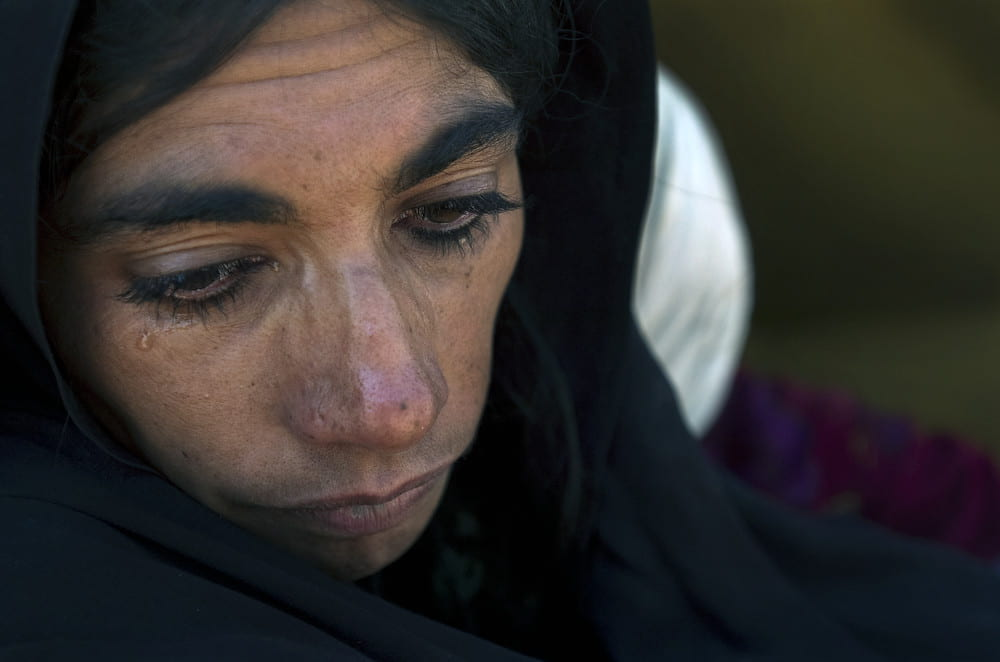 Photo of a woman crying. Her face is bruised.