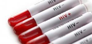 HIV +-