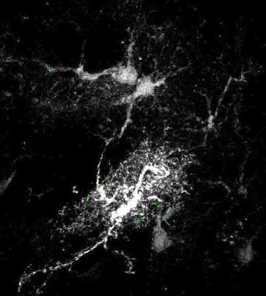 Astrocyte in the substantia nigra region of a rat brain