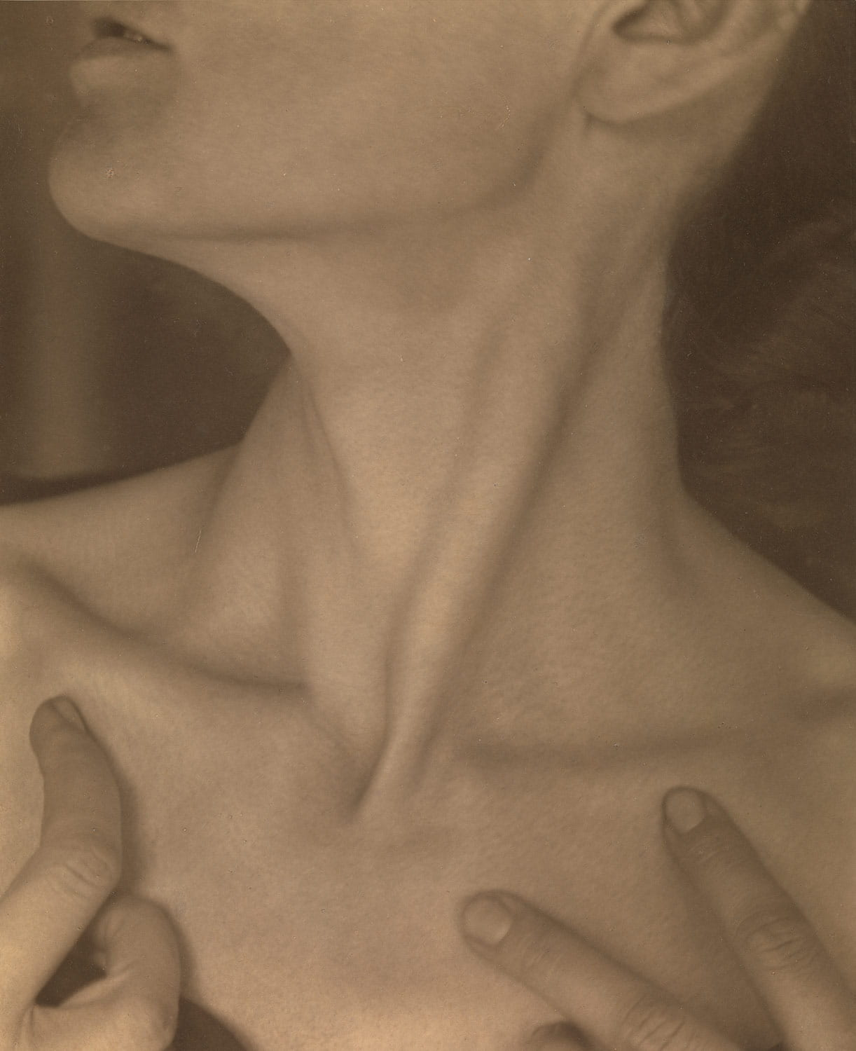 Fig. 8. Photograph of triangular musculature at the base of the neck.