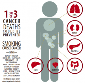 1 out of 3 Cancer Deaths Could be Prevented, Smoking can cause cancer in almost ever part of the human body.