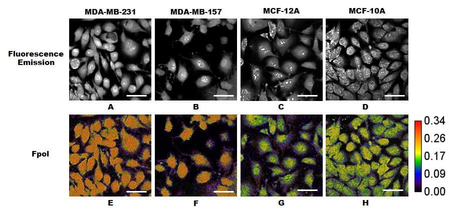 "A. N. Yaroslavsky, X. Feng, A. Muzikansky and M. R. Hamblin, ""Fluorescence polarization of methylene blue as a quantitative marker of breast cancer at the cellular level,"" Sci. Rep. 9, 940 (2019)."
