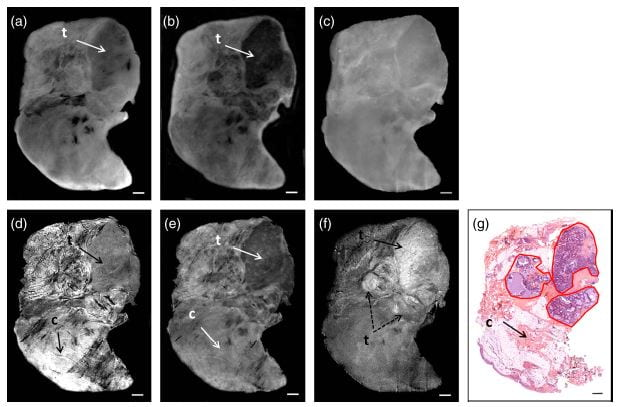 "Patel R, Khan A, Wirth D, Kamionek M, Kandil D, Quinlan R, and Yaroslavsky AN, ""Multimodal optical imaging for detecting breast cancer,"" J. Biomed. Opt. 17(6), (2012)."