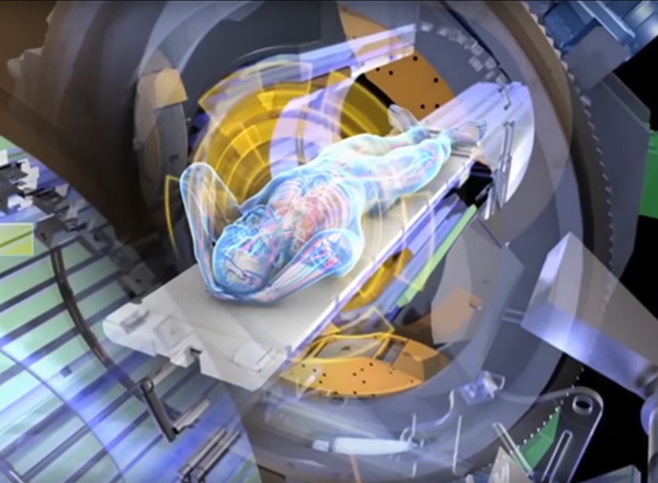 Siteman Cancer Center is first to offer ViewRay image-guided radiation therapy