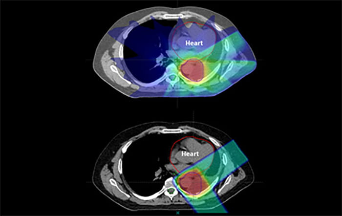 Dr. Baumann to present proton therapy findings at ASCO's annual meeting