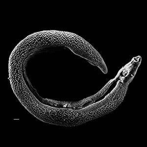 Scientists at Washington University School of Medicine in St. Louis have shown how a parasitic worm infection common in the developing world increases susceptibility to tuberculosis. Pictured is an electron micrograph of a Schistosoma parasite worm.