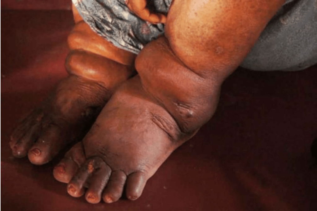 The feet of a patient with lymphatic filariasis