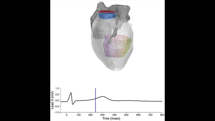 Rudy lab conducts first study of electromechanics of human hearts