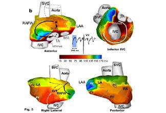Noninvasive Electrocardiac Imaging of Cardiac Arrhythmias