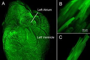 Heart's electrical propagation focus of WashU interdisciplinary study
