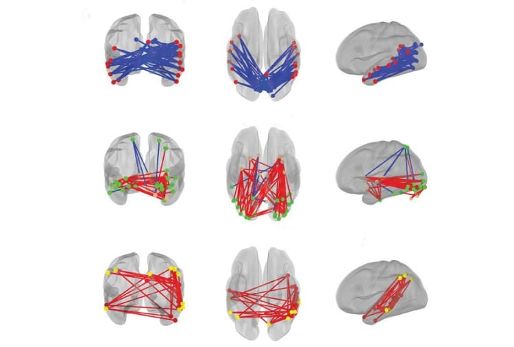 Repetitive behaviors tied to brain activity patterns in toddlers