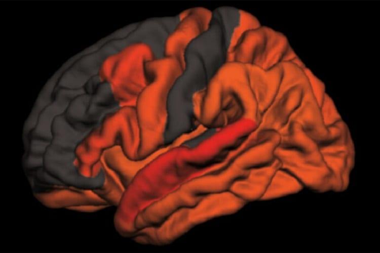 Decreased deep sleep linked to early signs of Alzheimer's disease