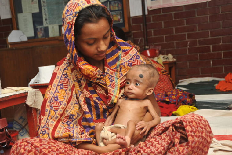 For malnourished children, new therapeutic food boosts gut microbes, healthy development