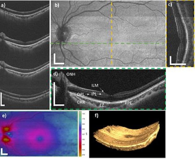 New technology offers faster, broader 3D imaging of retinas, feasibility study shows