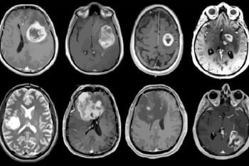 Pictured are MRI scans of eight patients with glioblastoma, an aggressive brain tumor. A new study led by Washington University School of Medicine in St. Louis has mapped out detailed molecular and genetic schematics of these tumors, opening the door to potential improved therapies. (Image: Albert H. Kim)