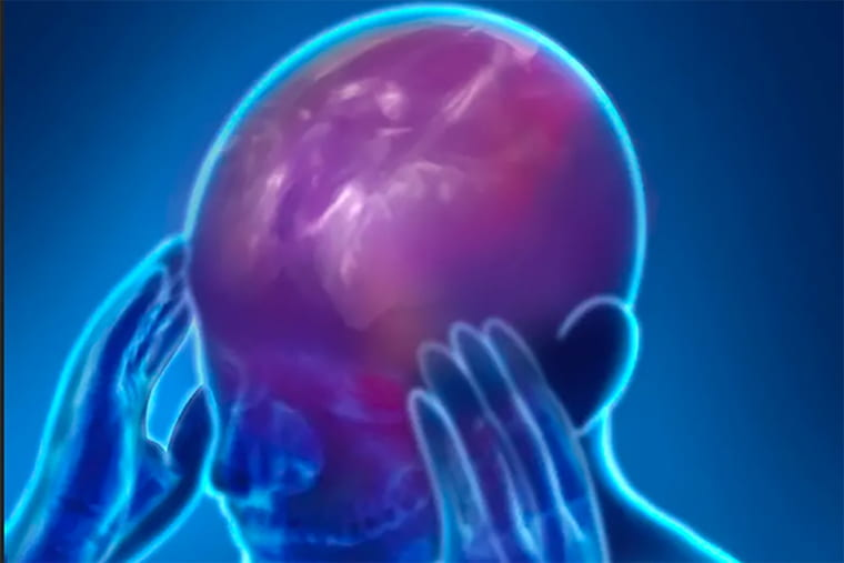 Emotional aspects of chronic pain isolated in brain circuitry