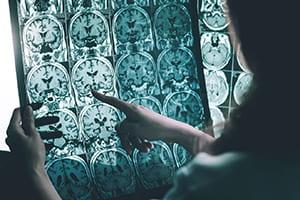 photo of brain scans on light board
