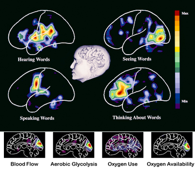 Home | NeuroImaging Laboratories | Washington University in St  Louis