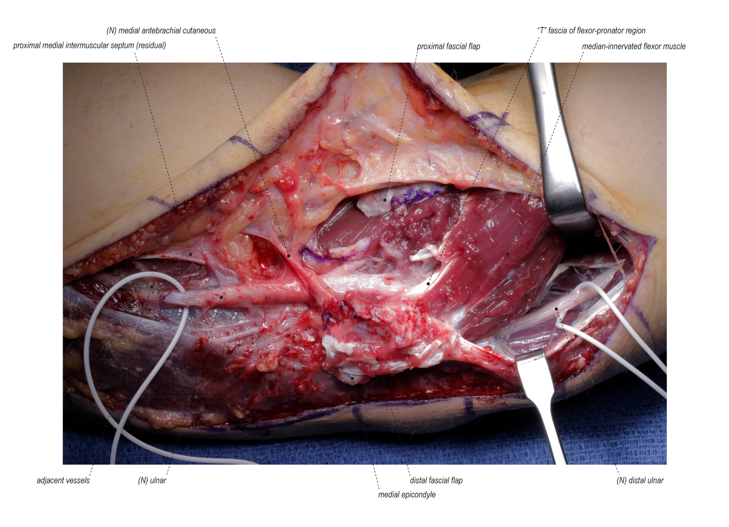 Revision Ulnar Nerve Transposition Following Failed Submuscular