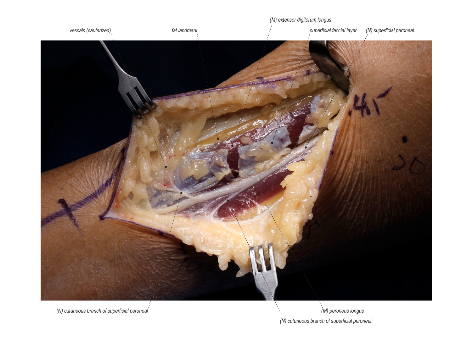 Superficial Peroneal Nerve Release in the Lower Leg | Surgical ...