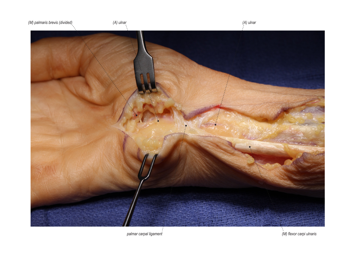 Anterior Interosseous to Ulnar Motor Supercharge Nerve Transfer
