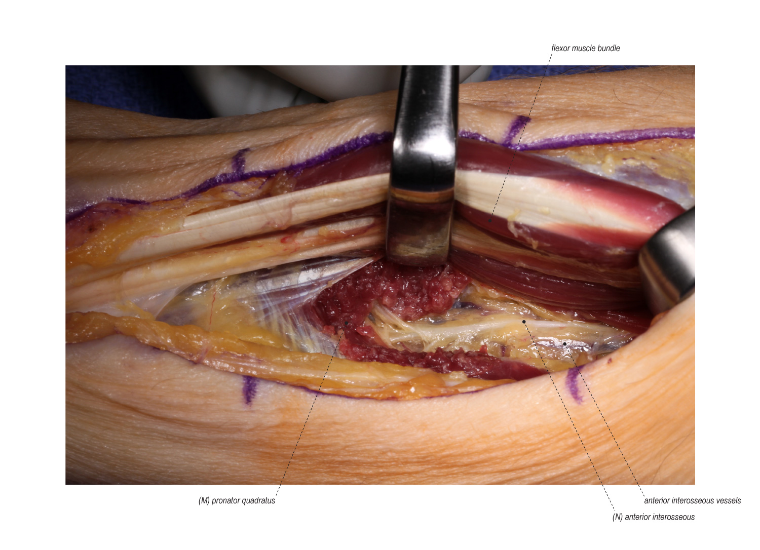 Anterior Interosseous To Ulnar Motor Nerve Transfer Surgical